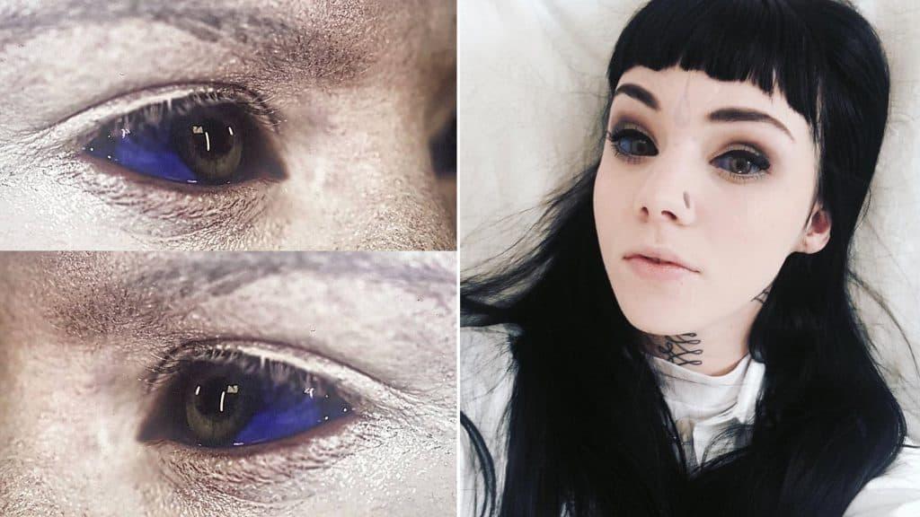 Korkunç Bir Dövme Türü: Göz İçerisine Dövme!