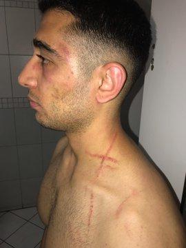 Ankara'da Dehşet: 'Keçiören A Takımı' Bir Genci Öldüresiye Darp Etti!