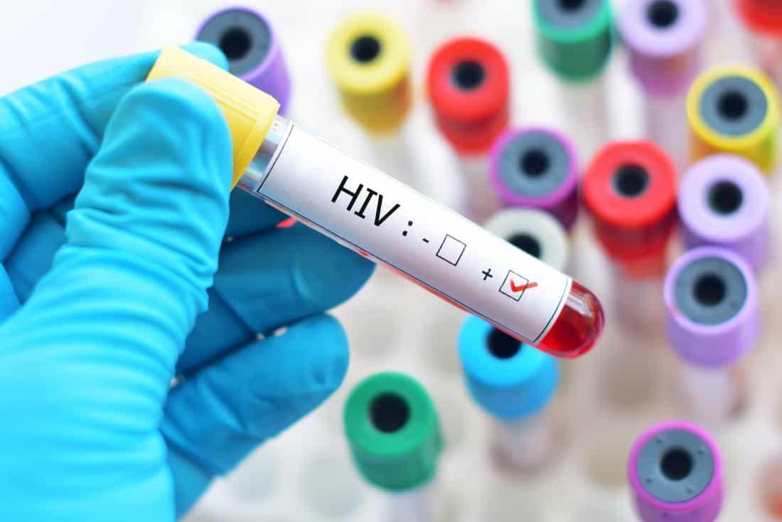 Her Yaştan İnsanın Korkulu Rüyası: HIV