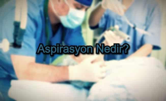 Aspirasyon Nedir?