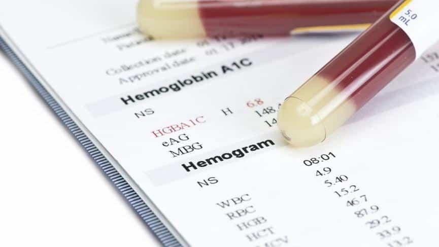 Hemogram Nedir? – Hemogram Testi Nasıl Yapılır? – Hemogram Testi Neden Yapılır?