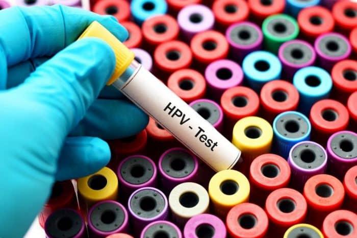Ketem Nedir? Ketem Tarama Testleri Nasıl Yapılır?